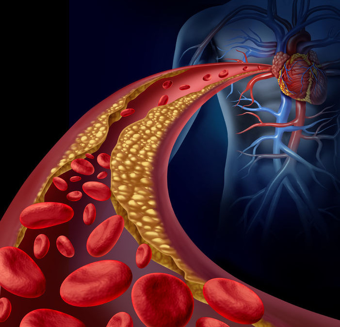 The Secrets to Lowering Your Cholesterol