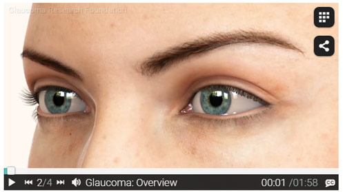 Glaucoma-Overview-Video
