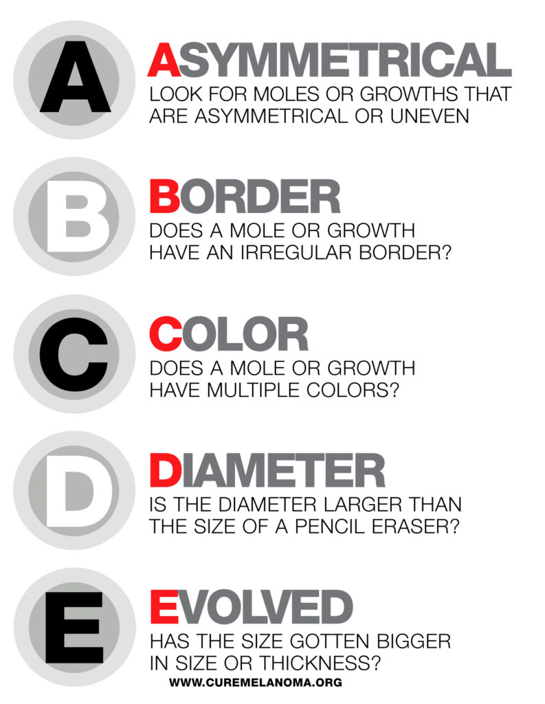 skin cancer ABCs of prevetion